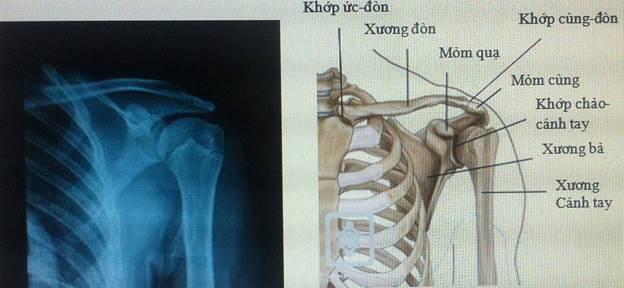 Chẩn đoán thoái hóa khớp vai dựa trên hình ảnh X-quang